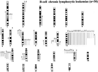 Genetic Imbalances in Progressed B-Cell Chronic Lymphocytic Leukemia