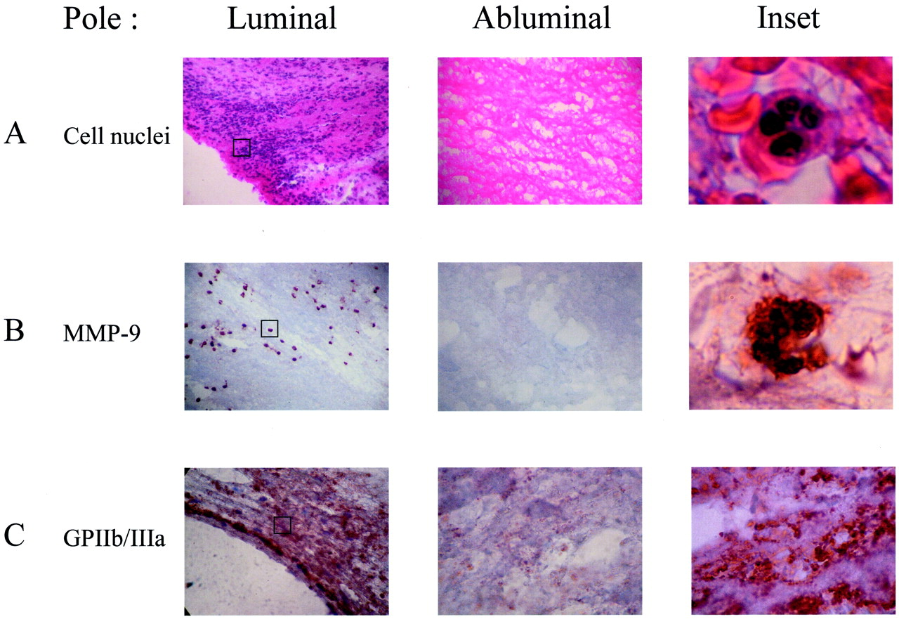 involvement of the mural thrombus as a site of protease release hi res