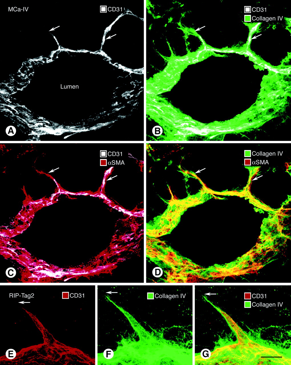 Abnormalities Of Basement Membrane On Blood Vessels And Endothelial Sprouts In Tumors