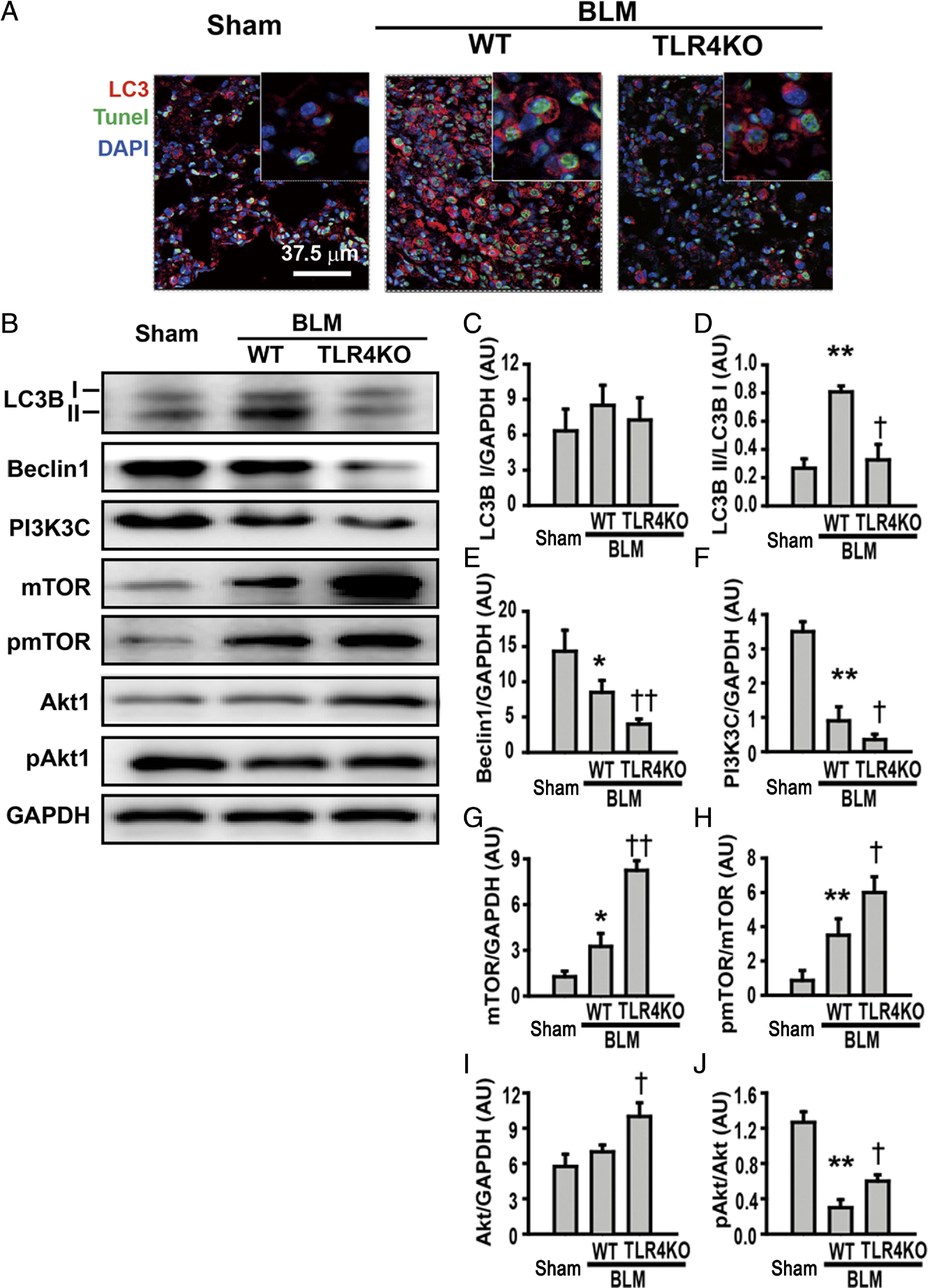 TLR4 Activity Is Required in the Resolution of Pulmonary ...