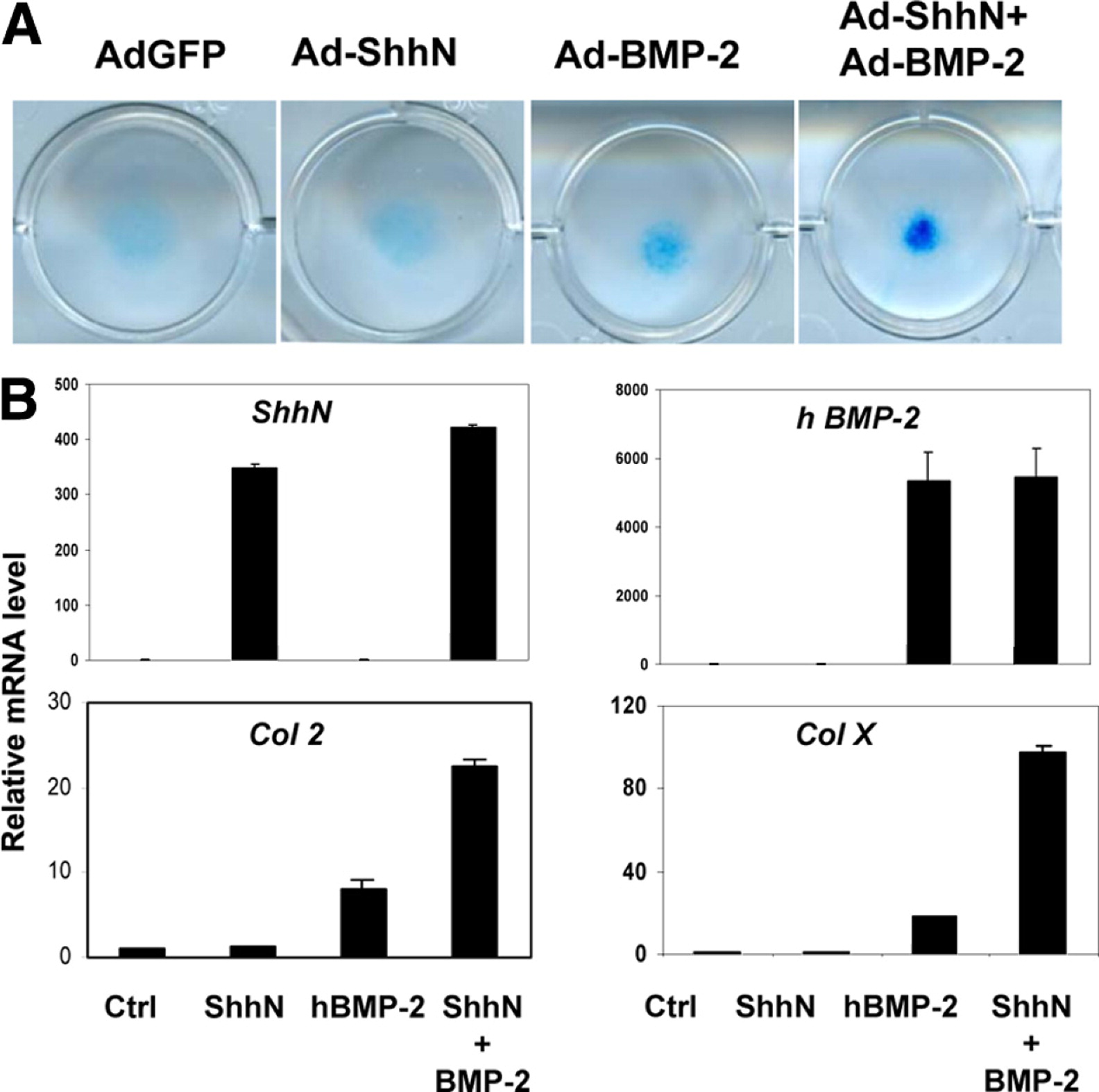 Activation Of The Hh Pathway In Periosteum Derived Mesenchymal Stem
