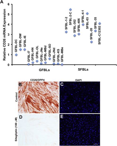 Elevated CD26 Expression by Skin Fibroblasts Distinguishes a