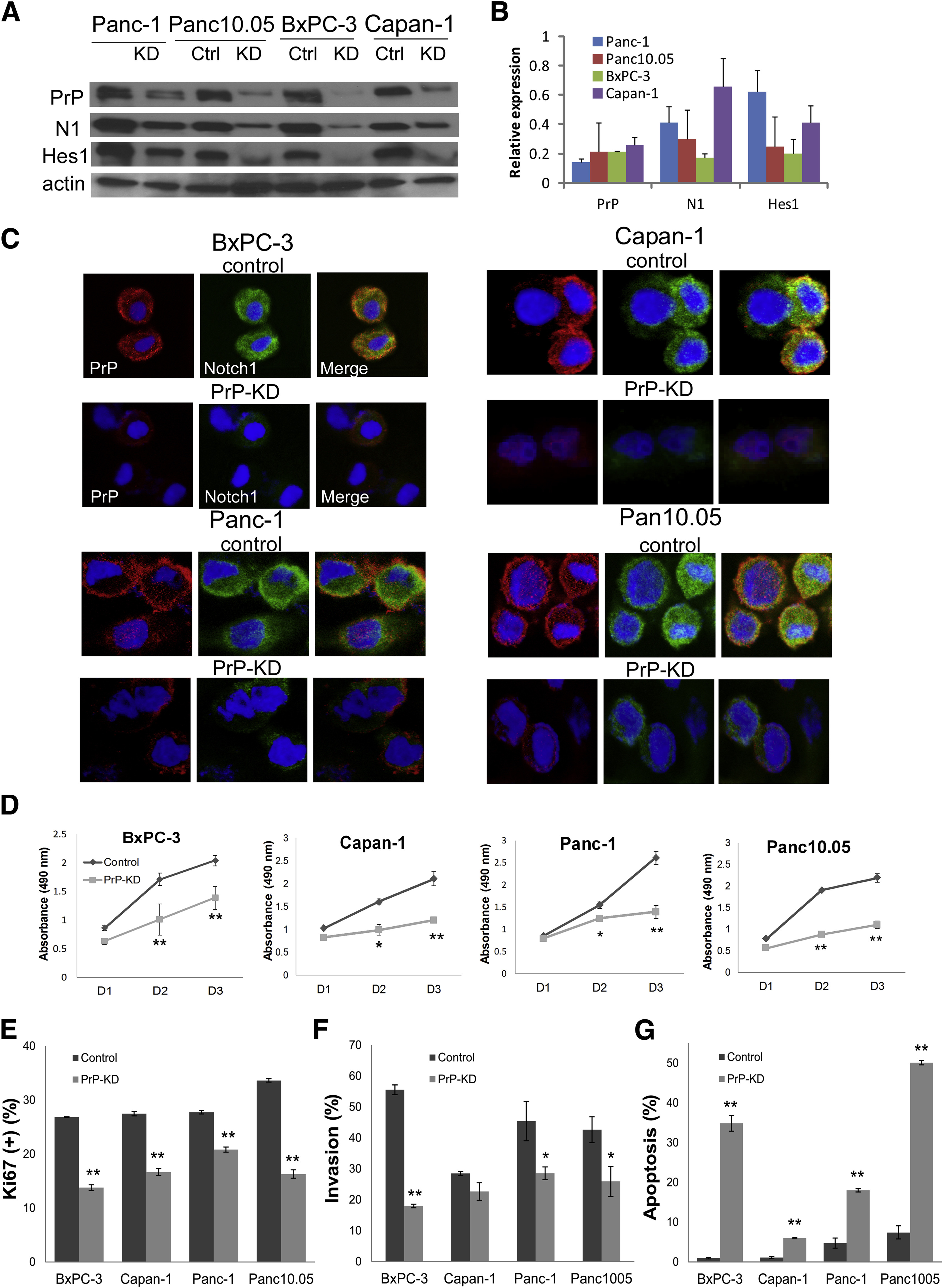 Cellular Prion Protein Mediates Pancreatic Cancer Cell Survival and ...