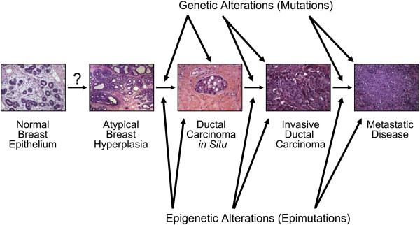 Melanoma Natural History