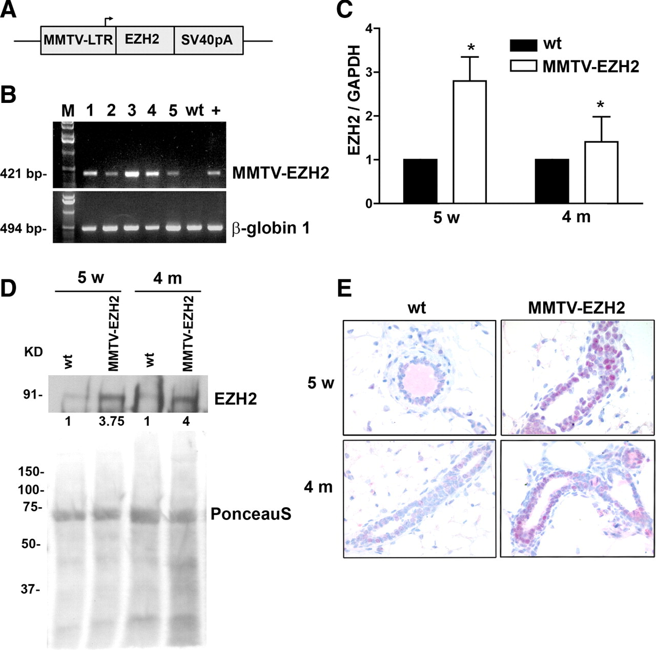 targeted overexpression of ezh2 in the mammary gland disrupts ductal