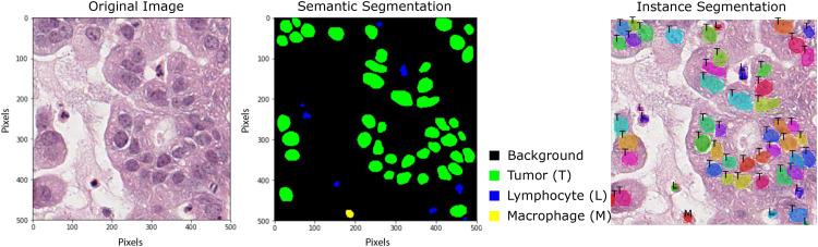 Pathology Image Analysis Using Segmentation Deep Learning