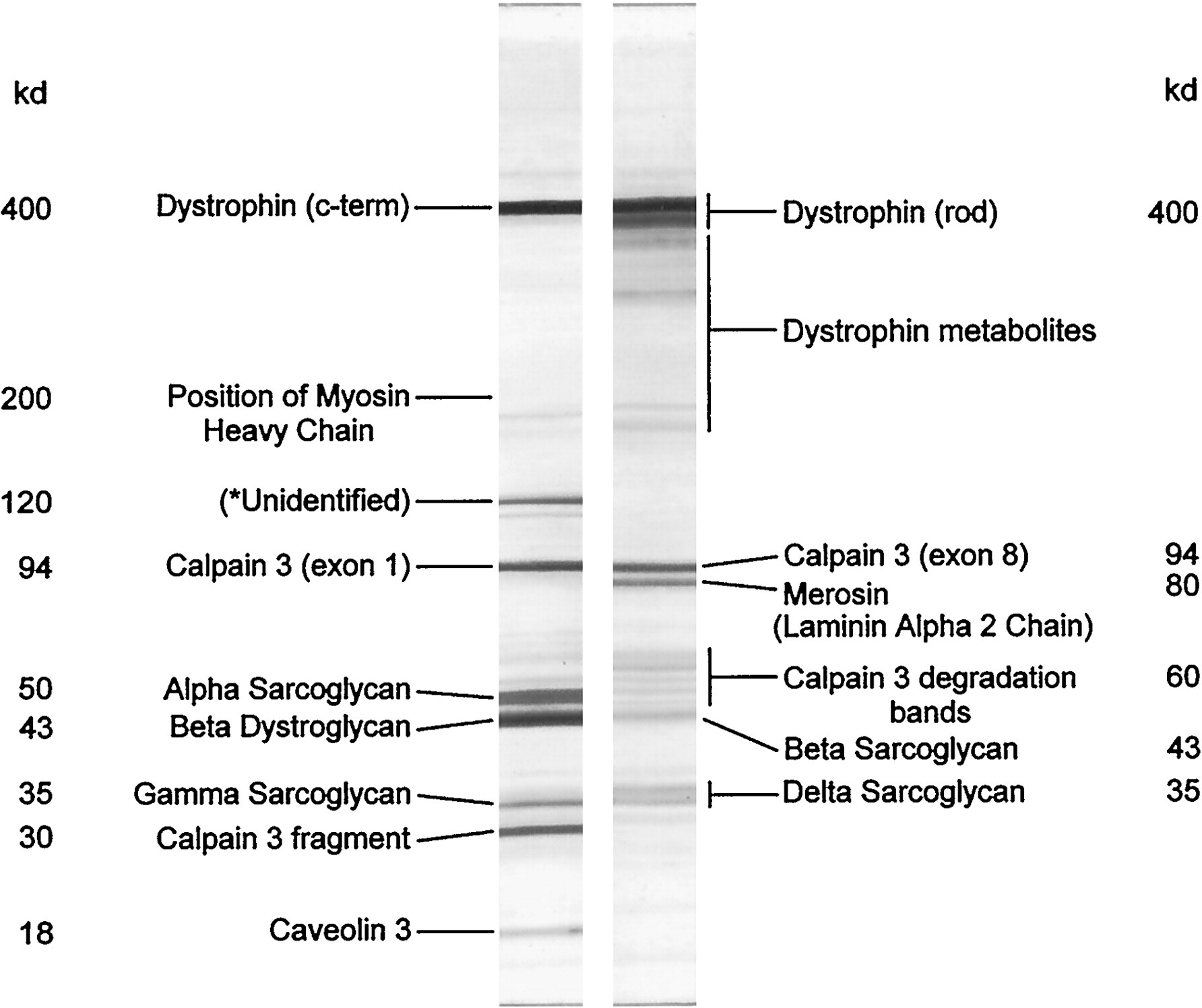 an analysis of muscular dystrophy Targeted deletion/duplication analysis: deletions and duplications involving the  dmd gene are a more common cause of duchenne muscular dystrophy and.